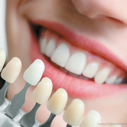 Finding the Best Benefits offered by Cosmetic Dentistry